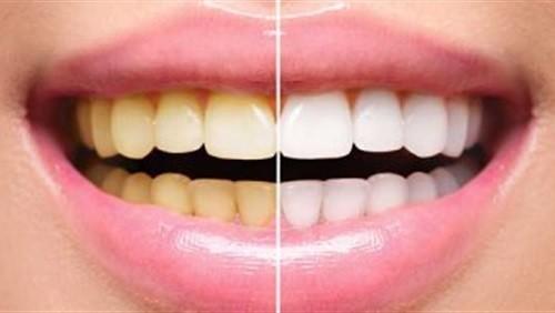 """دراسة تحذر من """"تبيض الأسنان""""..تسبب أضرار جسيمة بسبب المواد الكيماوية"""