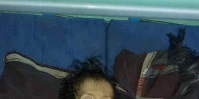 وفاة طفل بسبب سوء التغذية في المسيمير بلحج
