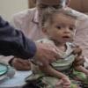 صرخات الكوليرا تغطي على آلام الحرب في اليمن (ملف)