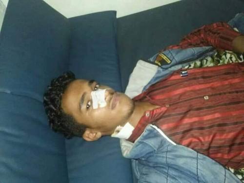 مليشيا الإصلاح في تعز تعتدي على الناشط صهيب الحسامي