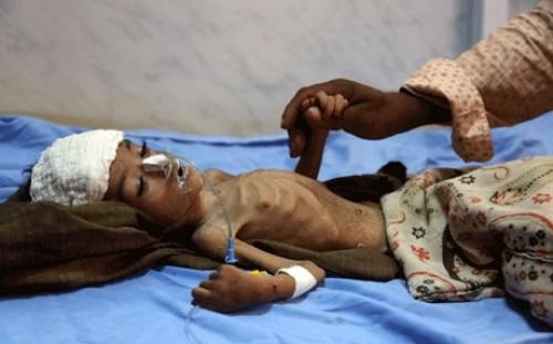 بعد تسجيل 209 حالة وفاة.. «الكوليرا» تفضح مليشيات الانقلاب في اليمن