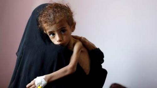 """نُذر فاجعة إنسانية.. """"الغذاء العالمي"""" يطالب بممرات آمنة في اليمن"""