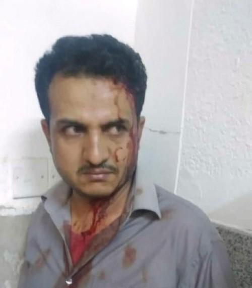 مشرف حوثي يعتدي على طبيب في مستشفى الثورة بصنعاء (تفاصيل)