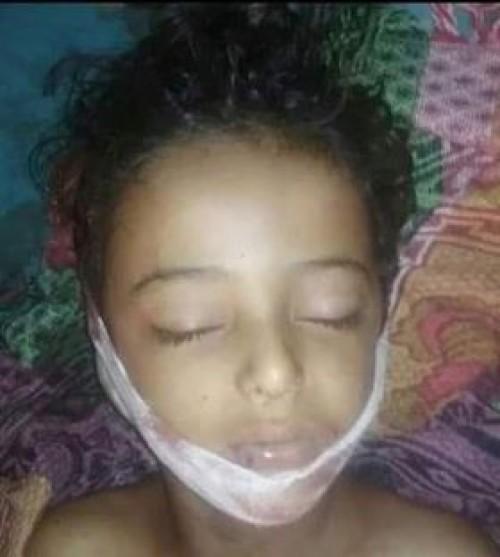 جريمة ضد الإنسانية..استشهاد طفل برصاص قناصة المليشيات بقعطبة