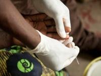 """""""الصحة العالمية"""" تعلن خلو الجزائر من الملاريا"""