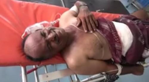 قناصة الحوثي تصيب مواطن مسن في حيس
