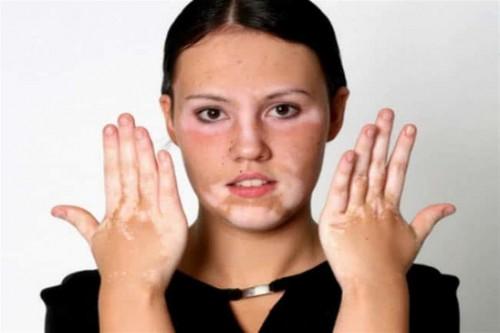 3 أسباب تصيبك بمرض البهاق.. تعرف على أعراضه ونصائح العلاج