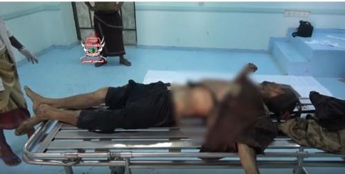 مصرع أحد أبرز القيادات الحوثية في الجبلية بالحديدة (فيديو)