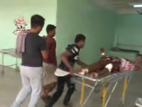 استشهاد امرأة وإصابة 4 آخرين من أسرة واحدة بقذيفة حوثية في حيس(فيديو)