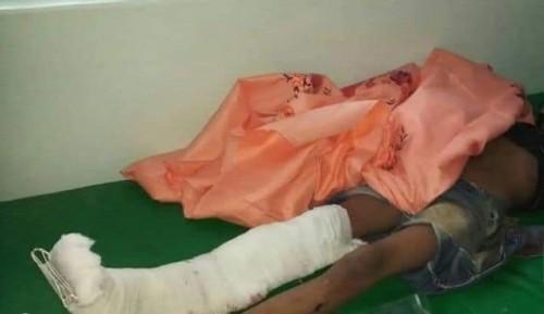 إصابة طفل وامرأة برصاص قناص حوثي شمال الضالع