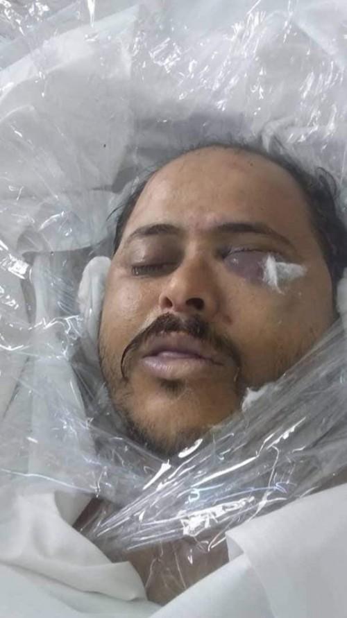 تفاصيل جديدة في واقعة مقتل نائب مدير أمن مأرب (صورة)