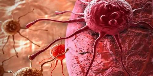 اكتشاف طريقة غريبة قد تقضي على السرطان