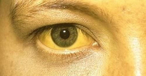 احذر.. اصفرار العين مؤشّر للإصابة بأمراض خطيرة