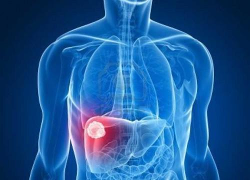 منظمة الصحة العالمية: الكبد الفيروسي وراء أكثر من مليون وفاة سنويًا