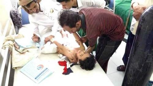 صحيفة سعودية: مليشيات الحوثي ترتكب أبشع الجرائم ضد المدنيين