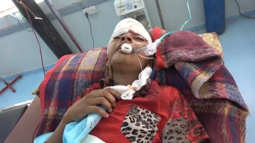 إصابة طفلين بقصف حوثي على منازل المواطنين بالتحيتا(فيديو)