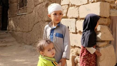 انحسار المساعدات وتغاضي عن جرائم المليشيات.. العالم يدير ظهره لليمن