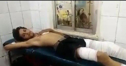 استشهاد طفلة وإصابة 3 آخرين من عائلة واحدة بقصف حوثي شمالي الضالع