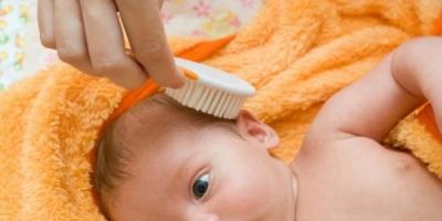 لمعالجة قشرة الشعر لدى طفلك.. اتبعي هذه الوصفات