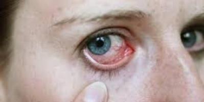 تحذيرات طبية من هربس العين..يسبب العمي