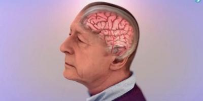 علماء بريطانيون يتوصلون لعلاج رائد يكافح شيخوخة الدماغ