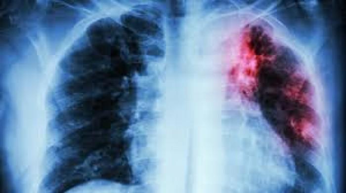 لمرضى السل..مزيج جديد من 3 أدوية يخفض مدة العلاج