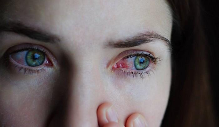 تعرف على التهاب القرنية.. أسبابه وأعراضه