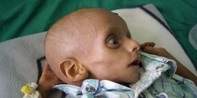 """المنظمات تدخل دائرة الاستهداف.. تصعيد حوثي في """"العدوان الصحي"""""""