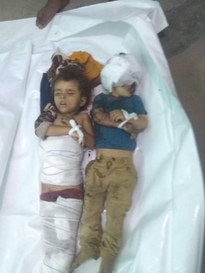 مقتل طفلين في قصف حوثي  على الأحياء السكنية بتعز