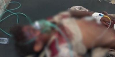 شهداء وجرحى أطفال من أسرة واحدة في قصف حوثي بالحديدة (فيديو)