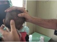 إصابة طفلين بقناصة مليشيا الحوثي في حيس بالحديدة (فيديو)