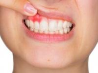 باحثون.. صحة الفم تؤثر على المخ والوظائف المعرفية