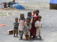 أطفالٌ منقوصة أوزانهم.. حرب حوثية أضرارها بالغة