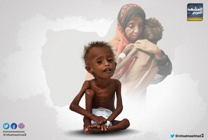 مليونا طفل يصارعون الموت في اليمن بسبب سوء التغذية (انفوجراف)