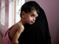 """سوء التغذية.. """"غول"""" الحوثي والشرعية الذي انتهك البطون الخاوية"""