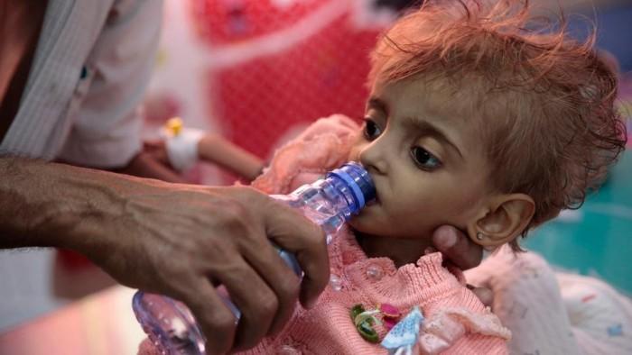 """الثلاسيميا.. سرطان جديد ينهش في عظام اليمنيين """"المنهكة"""""""