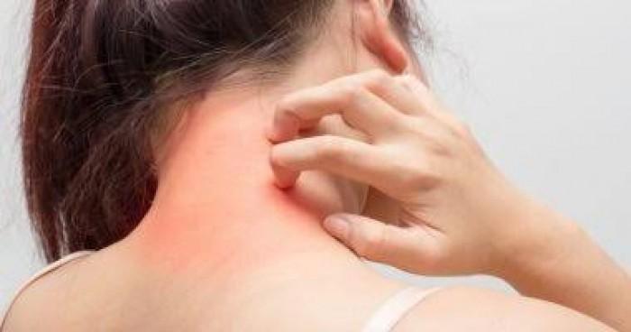 دراسة جديدة تسلط الضوء على نوع جديد من سرطان الجلد