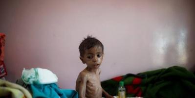 بطش الحوثي وتآمر الشرعية.. سنوات الحرب والـ20 مليون جريمة