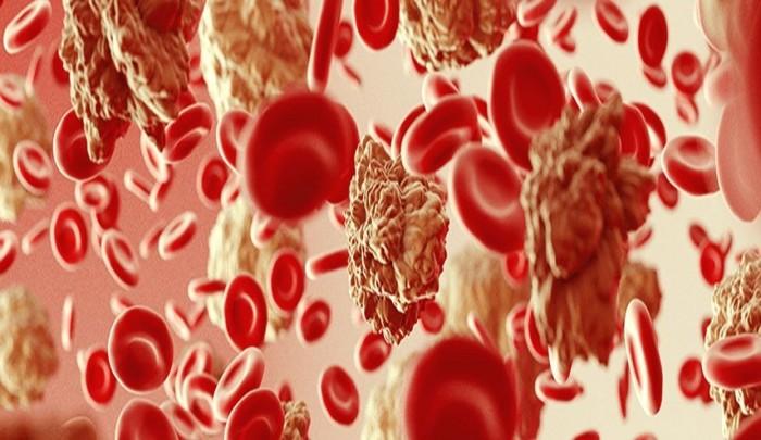 """علماء بريطانيون يكتشفون تقنية جديدة للتخلص من """"سرطان الدم"""""""