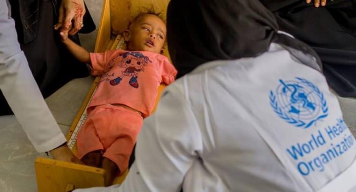 الصحة العالمیة: نسبة كبيرة من سكان اليمن على شفا الموت جوعا
