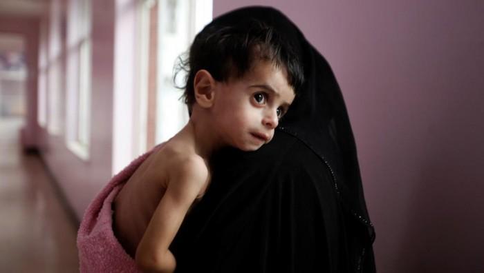 """""""سوء التغذية"""".. سرطان حوثي ينهش في العظام المنهكة"""