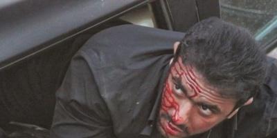 """أحمد العوضي يتعرض لحادث في """"شديد الخطورة"""" (صور)"""