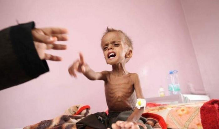 الحوثي وسوء التغذية.. هل يفقد اليمن جيلًا بأكمله؟