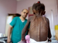 """ضحايا البطش الحوثي.. """"آمال دولية"""" تداعب مرضى صنعاء"""
