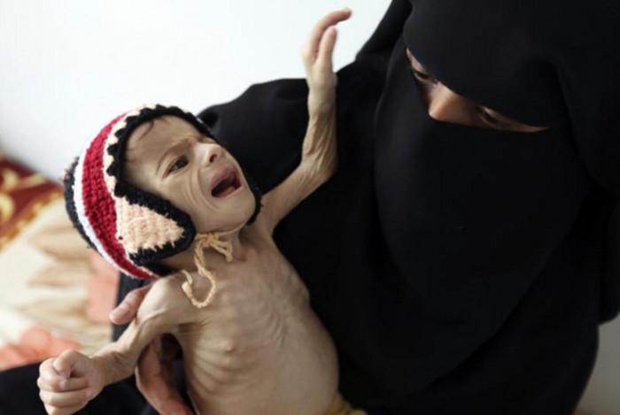 إحصاءات اليمن المرعبة.. هل توقظ ضمير العالم؟