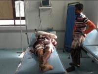 مليشيات الحوثي تصيب مواطن بجروح خطيرة في قرية السقف بالجبلية (فيديو)