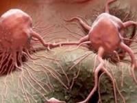 دراسة حديثة: مرض السرطان معد ومن الممكن أن ينتقل من شخص لآخر