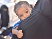 البرنامج الإنمائي: مساعدات غذائية إلى 296 ألف طفل وامرأة باليمن