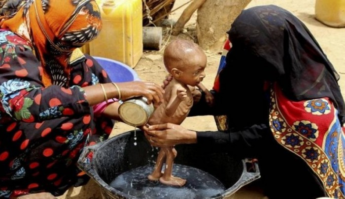 الفقر في اليمن.. سرطان الحوثي الذي ينهش في أجساد الضعفاء