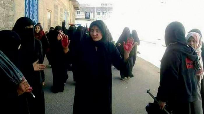 """بـ""""اتفاقيات إغاثية"""".. جهود سعودية لانتشال النساء من جحيم الحوثي"""